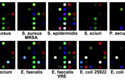 bakterija-test1