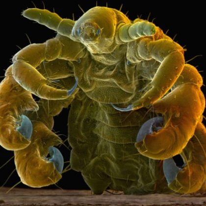 Pubic-Louse-Phthirus-pubis-sramna-us
